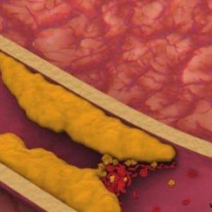 Високий рівень холестерину в крові причини і лікування